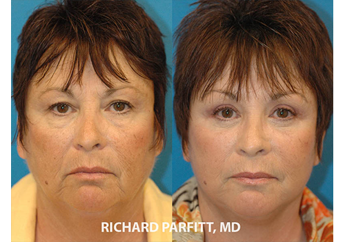 Blepharoplasty before and after Madison WI