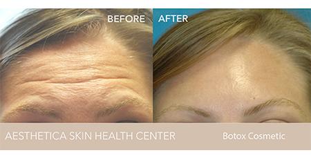 Botox - AestheticA Skin Health Center