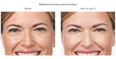 botox before and after WI