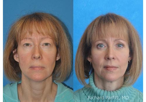 Eyelid-Surgery-Dr.-Parfitt