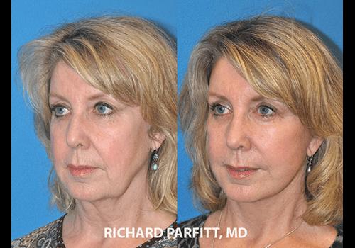 Facelift-Dr.-Parfitt