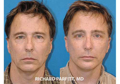 Facelift-Male-Dr.-Parfitt