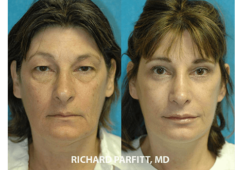 Facelift-Rejuvenation-Dr.-Parfitt