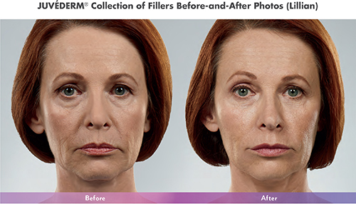Juvederm Collection Before After Photos