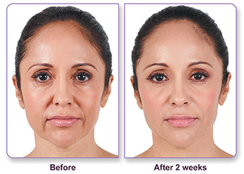 Juvederm before and after patient
