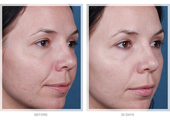 Obagi Radiance Chemical Peel before and after patient