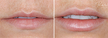 Restylane Lips before and after