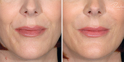 Restylane filler before and after