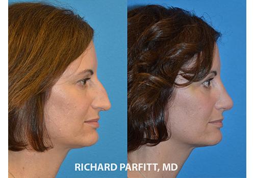 Rhinoplasty-Dr.-Parfitt