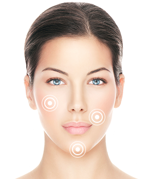 where is sculptra injected