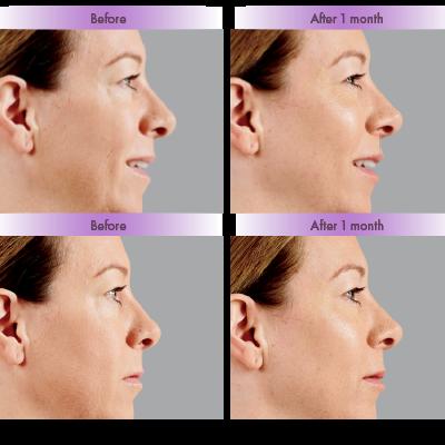 Cheek Enhancement Voluma before and after