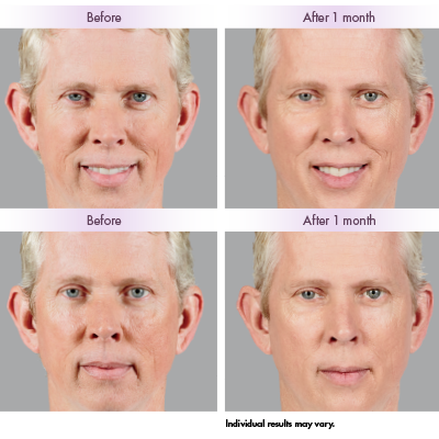 Male Juvederm before and after