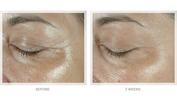 Obagi-Elastiderm-before-after