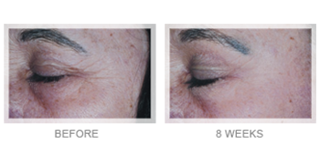 Obagi Gentle Rejuvenation before after patient