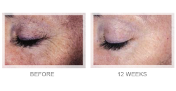 Obagi-Gentle Rejuvenation before and after patient
