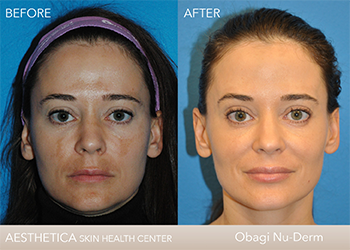 Obagi Nu-Derm System Before and After patient