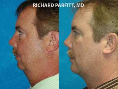 Neck liposuction chin implant before and after