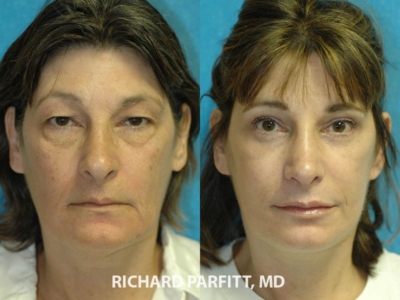 Facelift and Eyelid Rejuvenation before and after