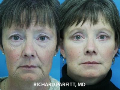 Facial rejuvenation surgery before and after