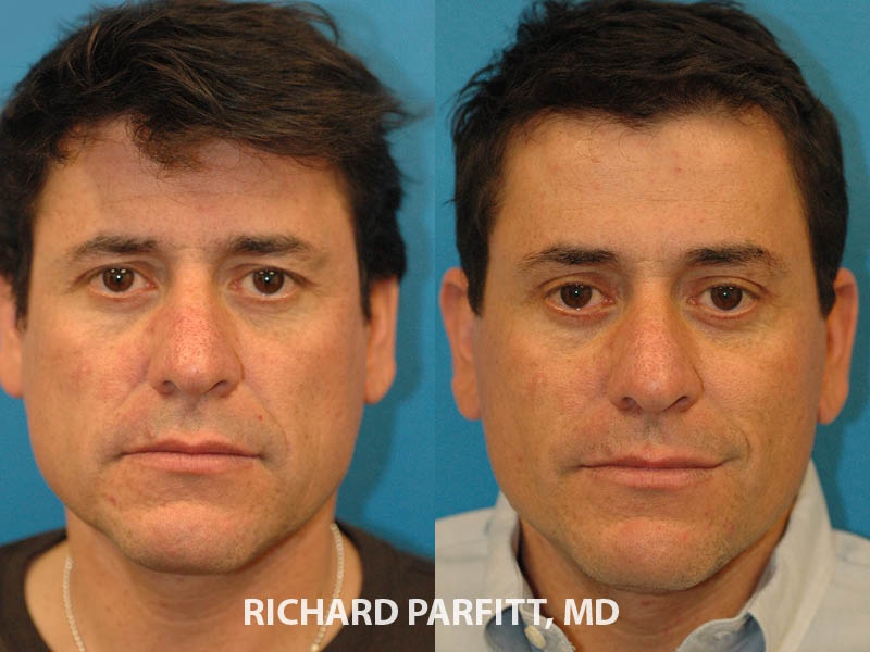 Facelift and eyelid surgery male before and after