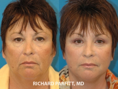 Eyelid surgery before and after Madison WI