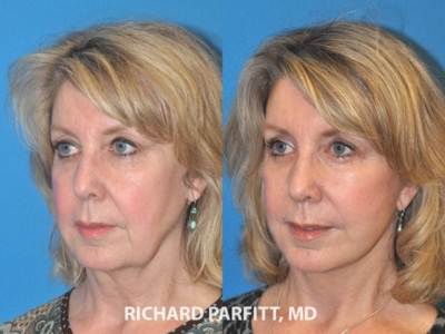 Facelift Madison WI before and after