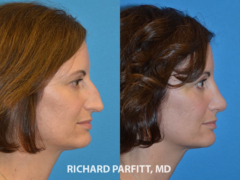 Rhinoplasty before and after nose job