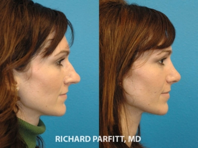 Rhinoplasty nose surgery before and after