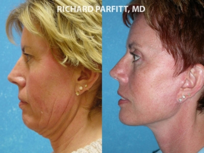 Facelift Neck Liposuction before and after