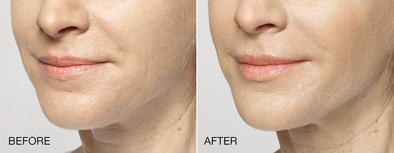 Restylane Silk Before and After Photos Lips Perioral Lines
