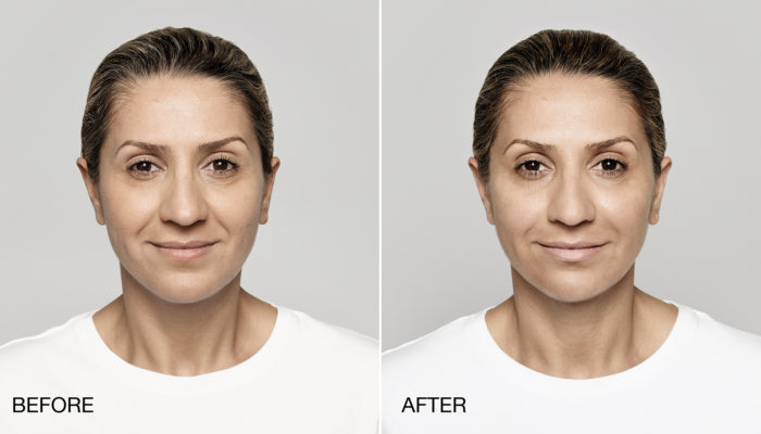 Restylane Lyft before and after photos