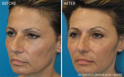 Sculptra Aesthetica Skin Health Center